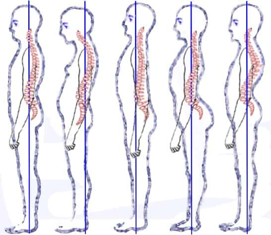 Posture types (vertebral column) classification by Staffel