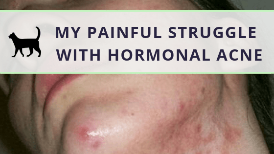 Being vulnerable: My painful struggle with hormonal acne