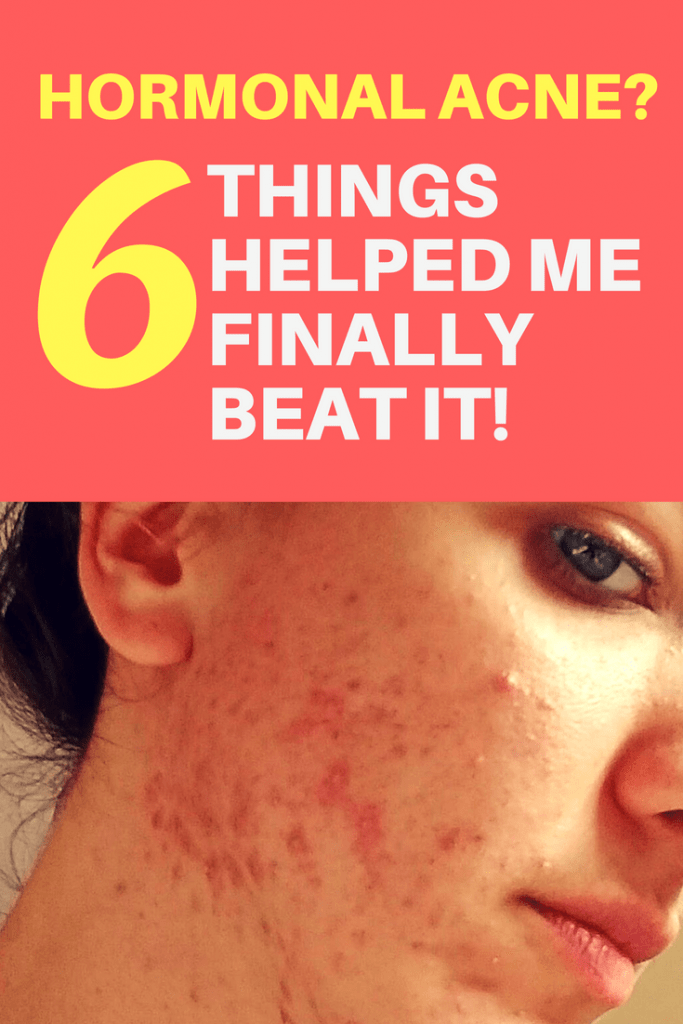 Looking for the perfect hormonal acne treatment? I tried so much in the last years. But in the end it came down to these 6 things to finally help me get rid of hormonal acne. Read more!